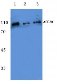 AP06095PU-N - EEF-2 kinase