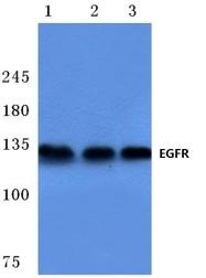 AP06097PU-N - EGFR / ERBB1