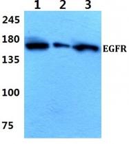 AP06099PU-N - EGFR / ERBB1