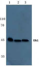 AP06101PU-N - ELK1