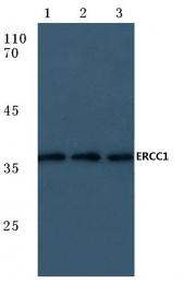 AP06106PU-N - ERCC1