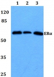 AP06110PU-N - Estrogen receptor alpha