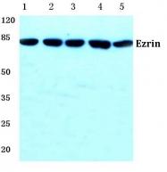 AP06113PU-N - Ezrin