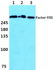 AP06114PU-N - Coagulation factor VIII (F8)