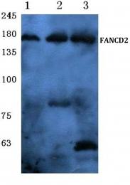 AP06115PU-N - FANCD2