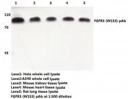 AP06120PU-N - CD333 / FGFR3