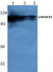 AP06128PU-N - GABBR1