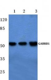 AP06129PU-N - GABRB1