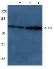 AP06130PU-N - GAD1 / GAD67
