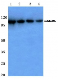AP06141PU-N - Glutamate receptor 6 / GLUR6
