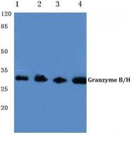 AP06147PU-N - Granzyme B (GZMB)