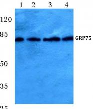 AP06148PU-N - Grp75 / HSPA9