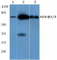 AP06153PU-N - Guanylate cyclase soluble GUCY1B3