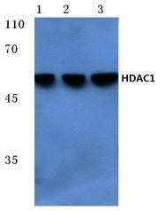 AP06155PU-N - HDAC1