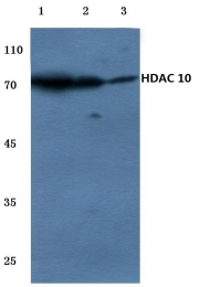 AP06156PU-N - HDAC10