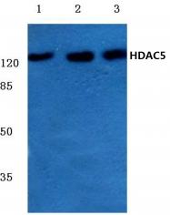 AP06158PU-N - HDAC5