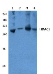 AP06159PU-N - HDAC5