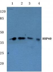AP06173PU-N - DNAJB1 / HSP40