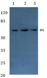 AP06184PU-N - Involucrin / IVL