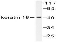 AP06197PU-N - Cytokeratin 16