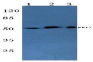AP06204PU-N - Cytokeratin 7
