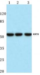 AP06206PU-N - Cytokeratin 8