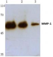 AP06224PU-N - MMP-1