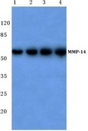 AP06227PU-N - MMP-14 / MT1-MMP