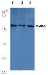 AP06233PU-N - MMP-3