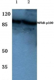 AP06241PU-N - NFKB2 / NF-kappa-B p100/p52
