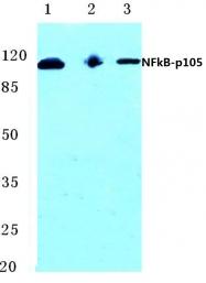AP06244PU-N - NF-kB p105 / p50