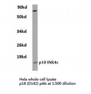 AP06262PU-N - CDKN2C / p18INK4c