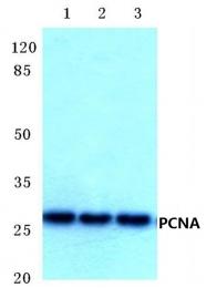 AP06281PU-N - PCNA