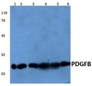 AP06282PU-N - PDGFB