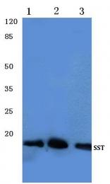 AP06321PU-N - Somatostatin / SST