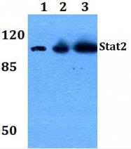 AP06326PU-N - STAT2