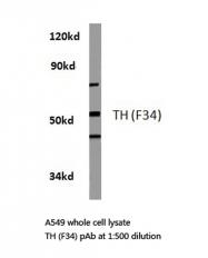 AP06358PU-N - Tyrosine 3-monooxygenase (TH)