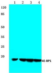 AP06365PU-N - EIF4EBP1 / 4E-BP1