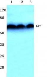 AP06368PU-N - AKT1 / PKB