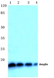 AP06370PU-N - Amylin / IAPP