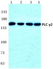 AP06406PU-N - PLCG2