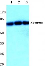 AP06424PU-N - Caldesmon