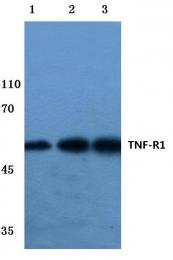 AP06465PU-N - CD120a / TNFR1