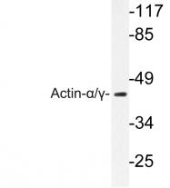 AP06487PU-N - pan Actin