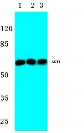 AP06488PU-N - AKT1 / PKB