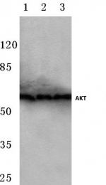 AP06489PU-N - AKT1 / PKB