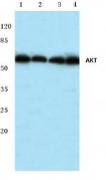 AP06490PU-N - AKT1 / PKB