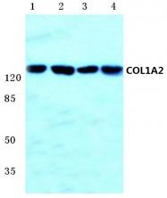 AP06516PU-N - Collagen type I alpha 2 chain