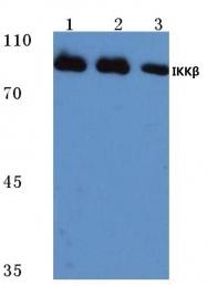AP06526PU-N - IKBKB / IKKB