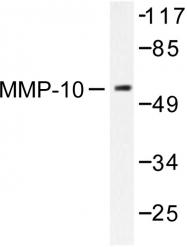 AP06537PU-N - MMP-10